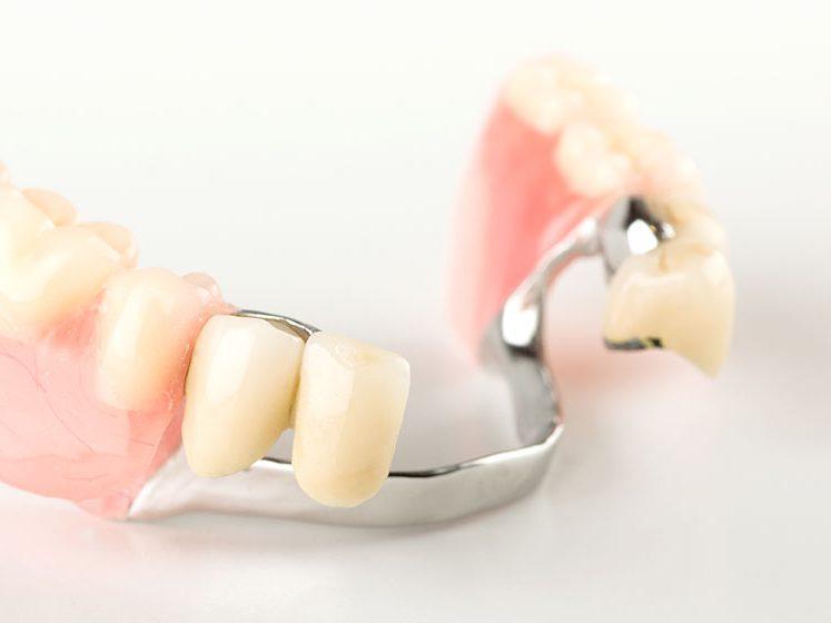 コーヌス義歯|仙台市青葉区の山下歯科クリニック