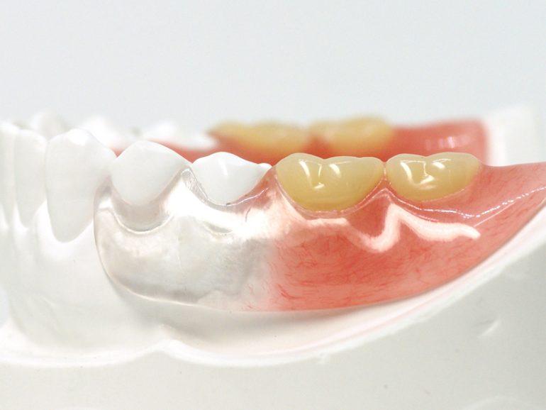 ノンクラスプ義歯|仙台市青葉区の山下歯科クリニック
