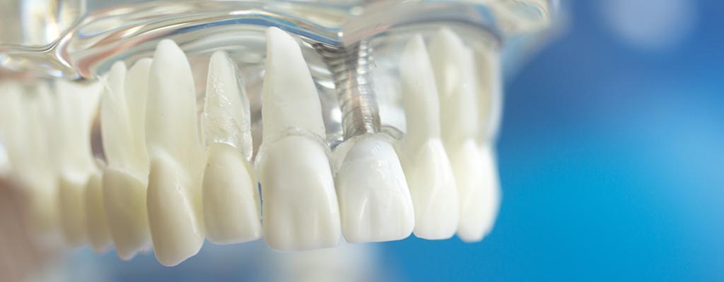 インプラント|仙台市青葉区の山下歯科クリニック