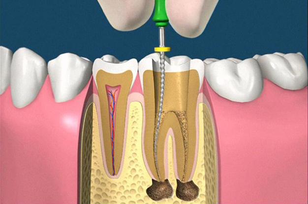 根管治療|仙台市青葉区の山下歯科クリニック