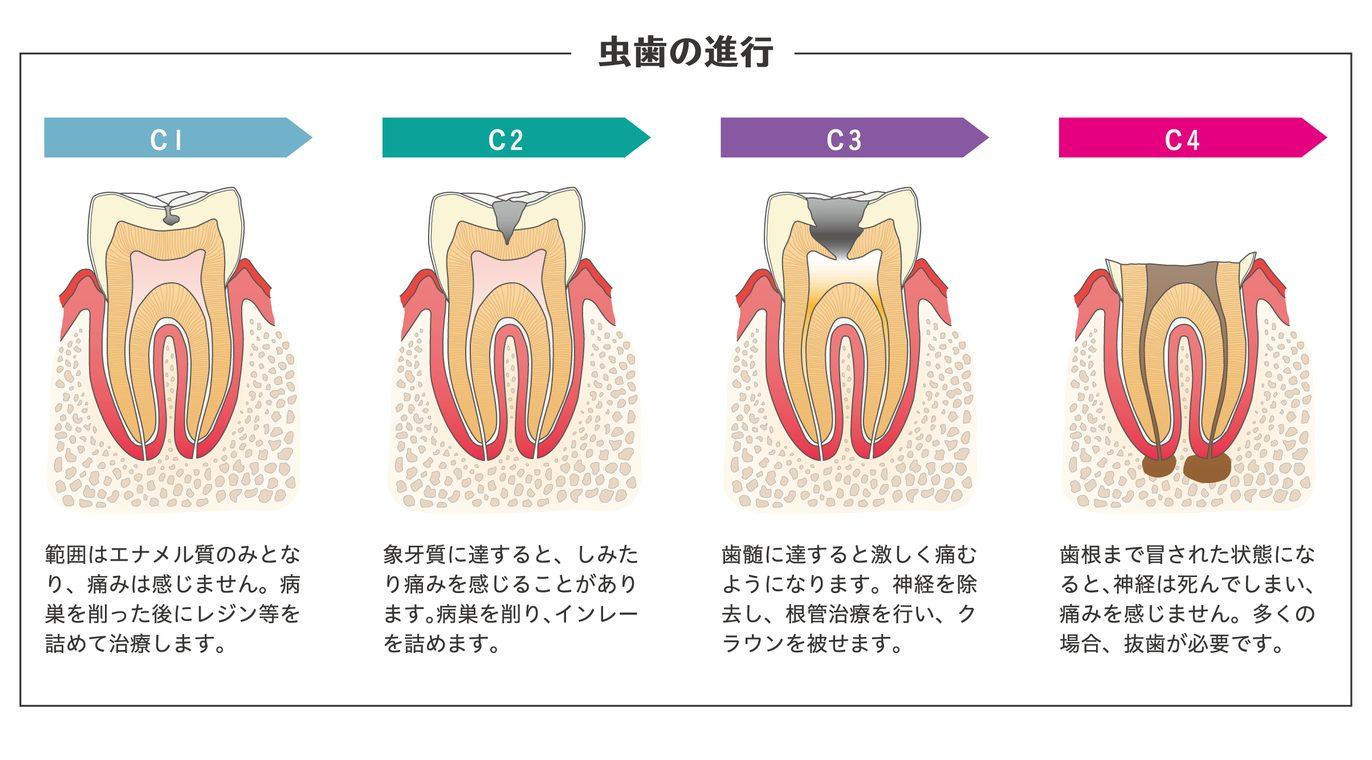 虫歯の進行|山下歯科クリニック
