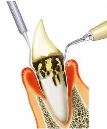 歯周外科手術|仙台市青葉区の歯医者