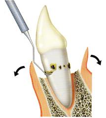 フラップ手術|仙台市青葉区の歯医者